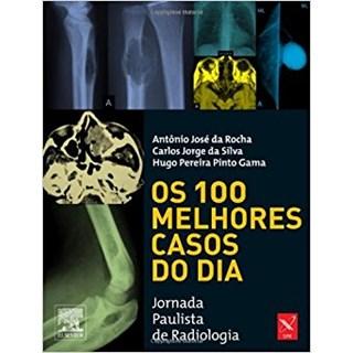 Livro - 100 Melhores Casos do Dia, Os - Rocha#