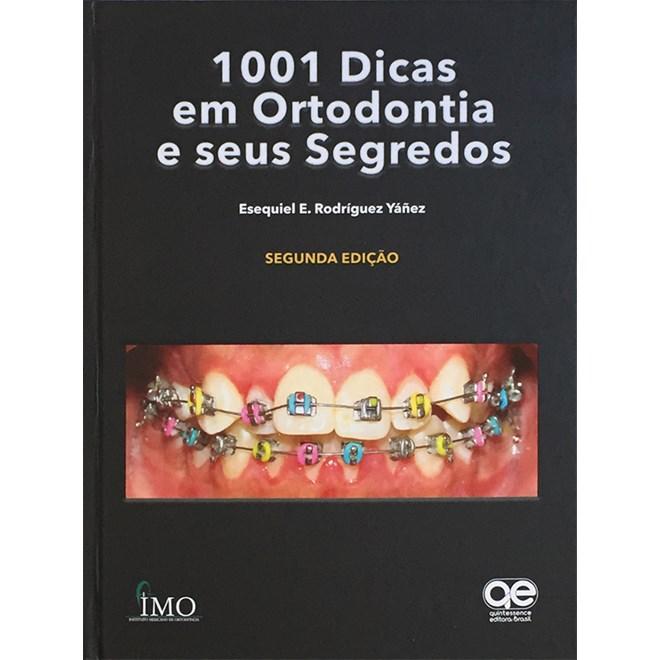 Livro - 1001 Dicas em Ortodontia e seus Segredos - Yanez