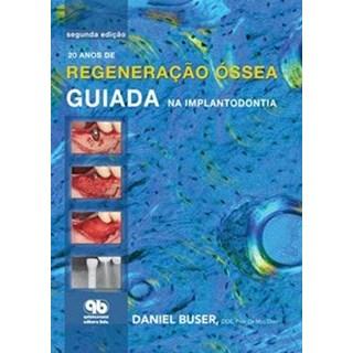 Livro - 20 anos de Regeneraçao Óssea Guiada na Implantodontia - Buser