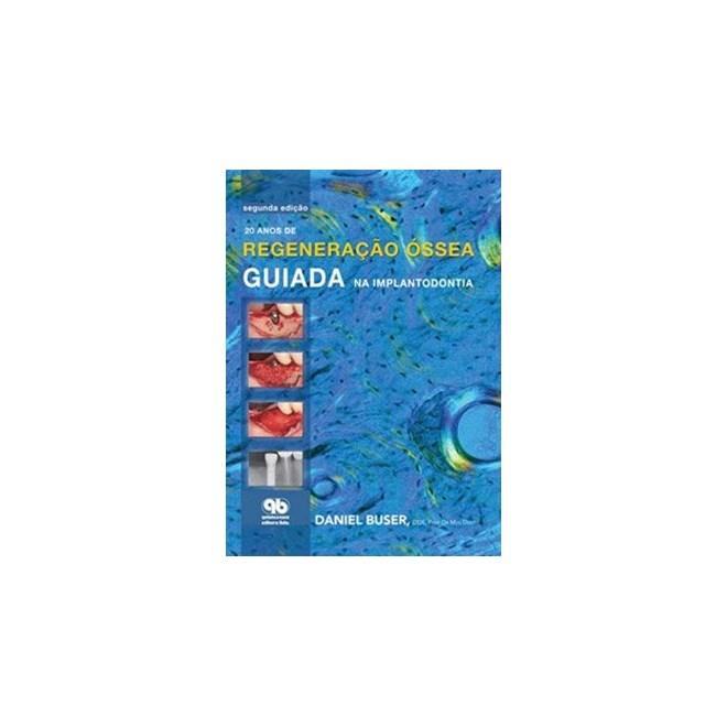 Livro - 20 anos de Regeneração Óssea Guiada na Implantodontia - Buser - Santos