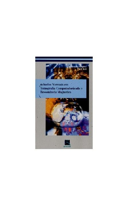 Livro - Achados Normais em Tomografia Computadorizada e Ressonância Magnética - Moeller