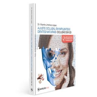 Livro - Ajuste Oclusal Em Implantes E Dentes Naturais: Oclusão em 3D - Jiménez-Lépez