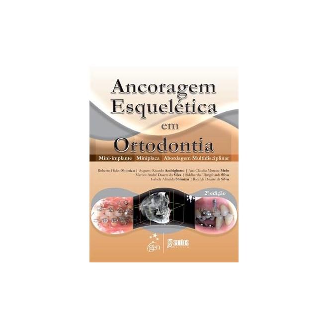 Livro - Ancoragem Esquelética em Ortodontia - Mini-Implante - Miniplaca -  Abordagem Multidisciplinar - 88b4ebed25