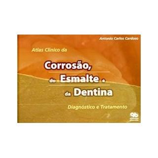 Livro - Atlas Clínico da Corrosão, do Esmalte e da Dentina - Cardoso