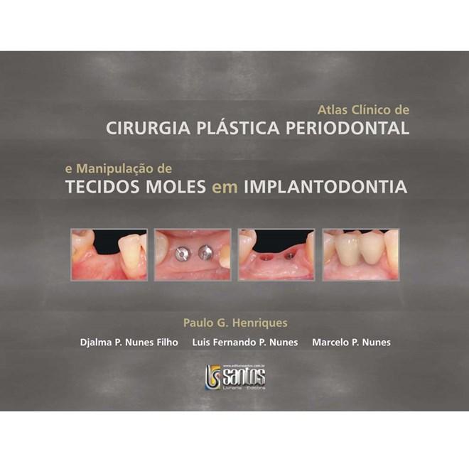 Livro - Atlas Clínico de Cirurgia Plástica Periodontal - Henriques