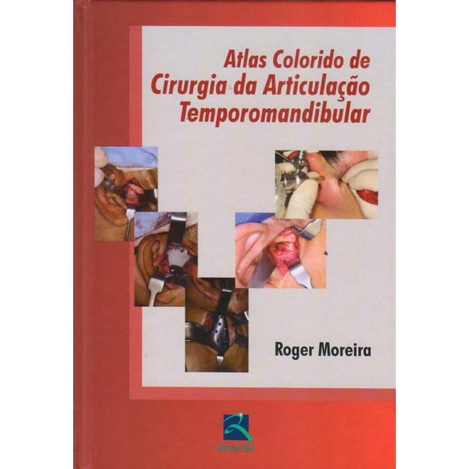Livro - Atlas Colorido de Cirurgia da Articulação Temporomandibular - Moreira