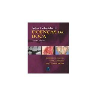 Livro - Atlas Colorido de Doenças da Boca - Langlais