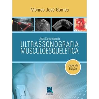 Livro - Atlas Comentado de Ultrassonografia Musculoesquelética - Monres