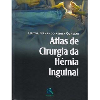 Livro - Atlas de Cirurgia da Hérnia Inguinal - Consani