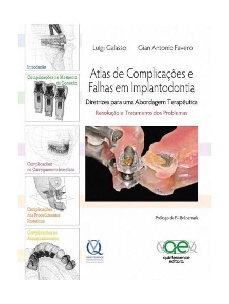 Livro - Atlas de Complicações e Falhas em Implantodontia - Galasso