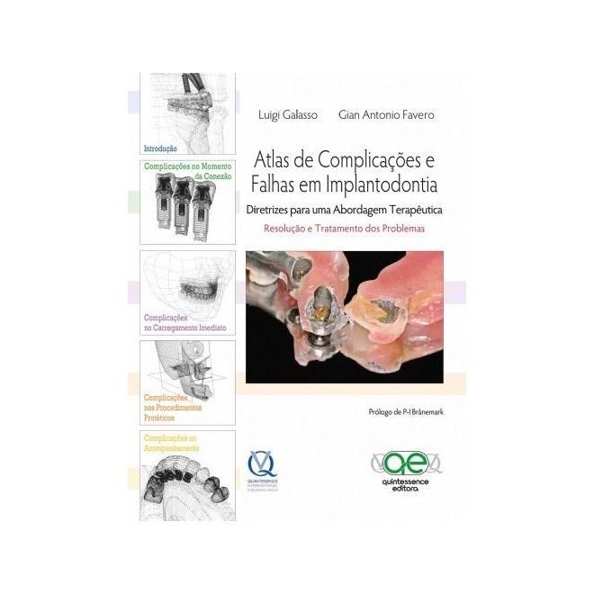 Livro - Atlas de Complicações e Falhas em Implantodontia - Galasso - Santos