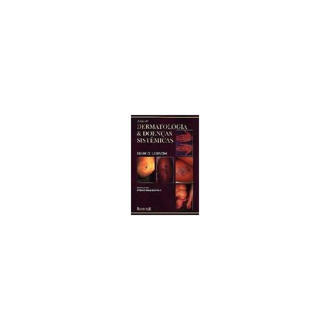 Livro - Atlas de Dermatologia e Doenças Sistêmicas - Lebwohl