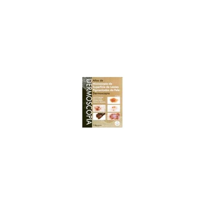 Livro - Atlas de Dermoscopia Microscopia de Superfície de Lesões Pigmentadas da Pele: Dermoscopia - Menzies