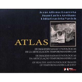 Livro - Atlas de Imagens Sadias e Patológicas da Articulação Temporomandibular - Learreta