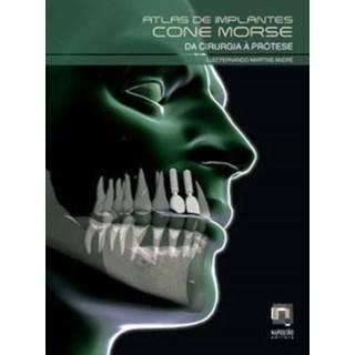 Livro - Atlas de Implantes Cone Morse da Cirurgia à Prótese - André