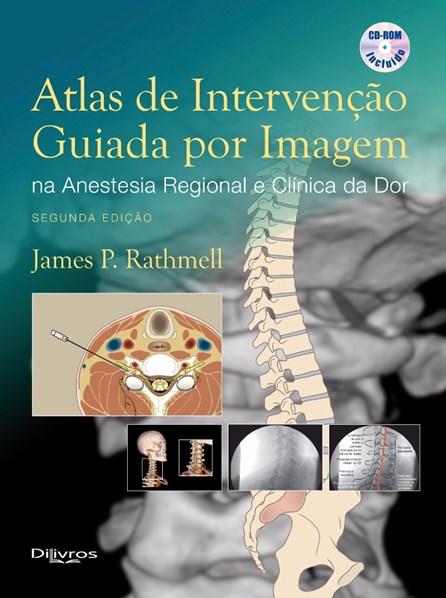 Livro - Atlas de Intervenção Guiada Por Imagem na Anestesia Regional e Clínica da Dor - Rathmell