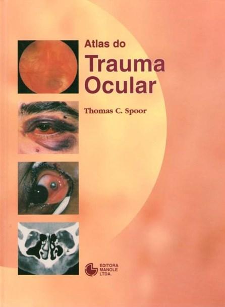 Livro - Atlas do Trauma Ocular - Spoor