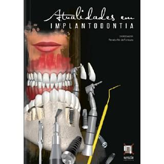 Livro - Atualidades em Implantodontia - Fontoura
