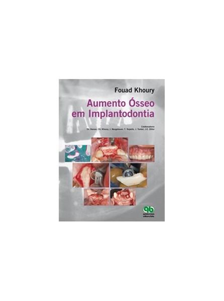 Livro - Aumento Ósseo em Implantodontia - Khoury