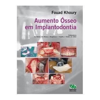 Livro - Aumento Ósseo em Implantodontia - Khoury - Santos