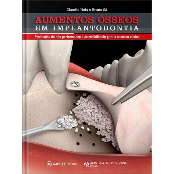 Livro Aumentos Ósseos Em Implantodontia - Nóia - Napoleão