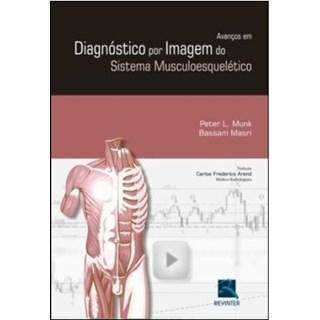 Livro - Avanços em Diagnóstico por Imagem do Sistema Musculoesquelético - Munk