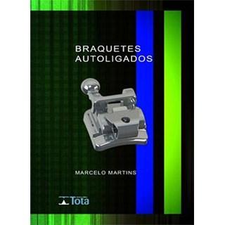 Livro - Braquetes Autoligados - Martins