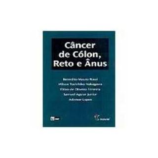 Livro - Câncer de Cólon, Reto e Ânus - Rossi