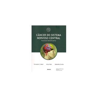 Livro - Câncer do Sistema Nervoso Central - TMC - Hospital Sírio Libanês