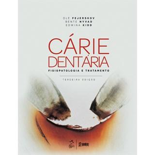Livro - Cárie Dentária - A Doença e seu Tratamento Clínico - Ferjeskov