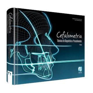 Livro - Cefalometria - Técnicas de Diagnóstico e Procedimentos - Vedovello Filho