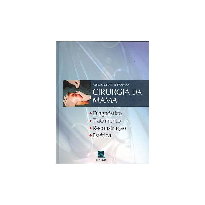 Livro - Cirurgia da Mama - Diagnóstico, Tratamento, Reconstrução e Estética - Franco