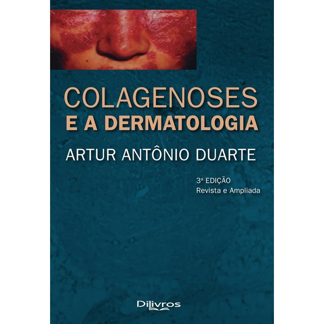 Livro - Colagenoses e a Dermatologia - Duarte