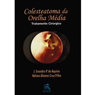 Livro - Colesteatoma da Orelha Média - Tratamento Cirurgico