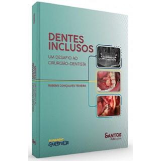 Livro Dentes Inclusos - Teixeira - Santos Pub