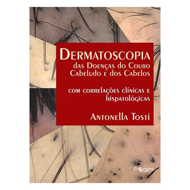 Livro - Dermatoscopia das Doenças do Couro Cabeludo e dos Cabelos - Tosti