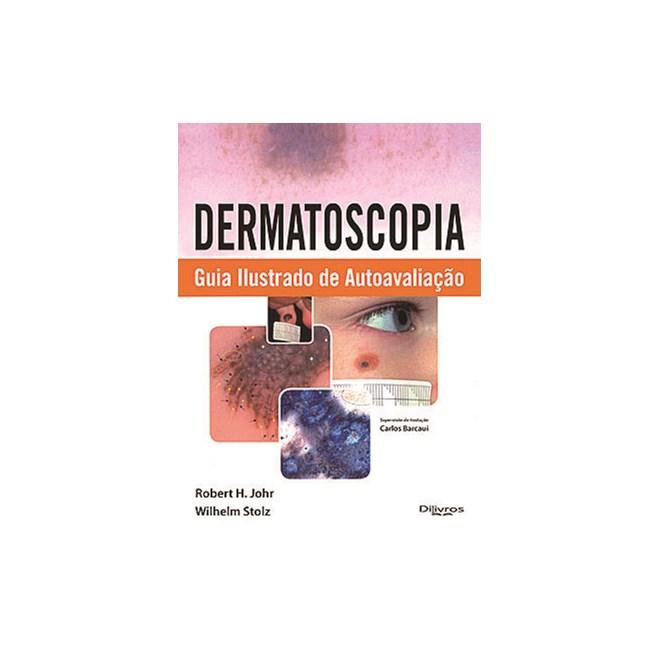 Livro - Dermatoscopia Guia Ilustrado de Autoavaliação - Johr