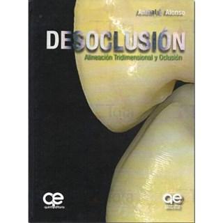 Livro - Desoclusión • Alineación Tridimensional y Oclusión - Alonso