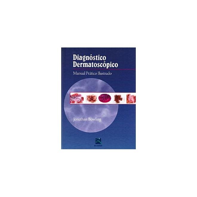 Livro - Diagnóstico Dermatoscópico - Manual Prático Ilustrado - Bowling