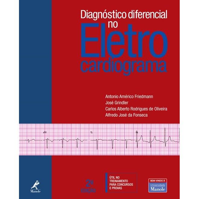 Livro - Diagnóstico Diferencial no Eletrocardiograma - Friedmann