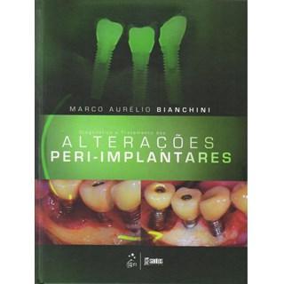 Livro - Diagnóstico e Tratamento das Alterações Peri-Implantares - Bianchini