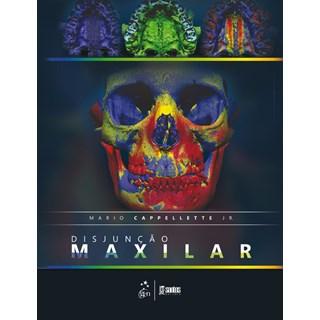 Livro - Disjunção Maxilar - Cappellette Júnior