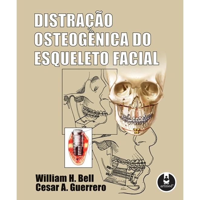 Livro - Distração Osteogênica do Esqueleto Facial - Bell @@
