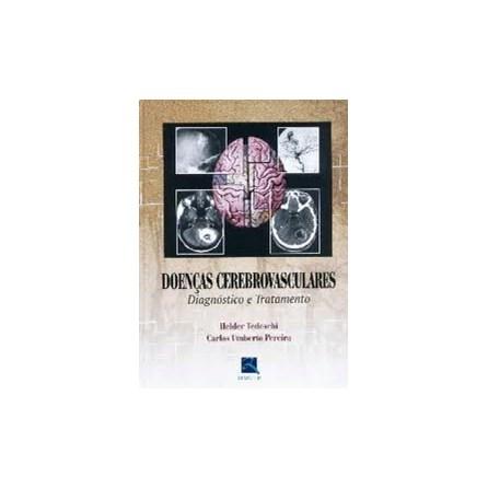 Livro - Doenças Cerebrovasculares - Diagnóstico e Tratamento - Tedeschi