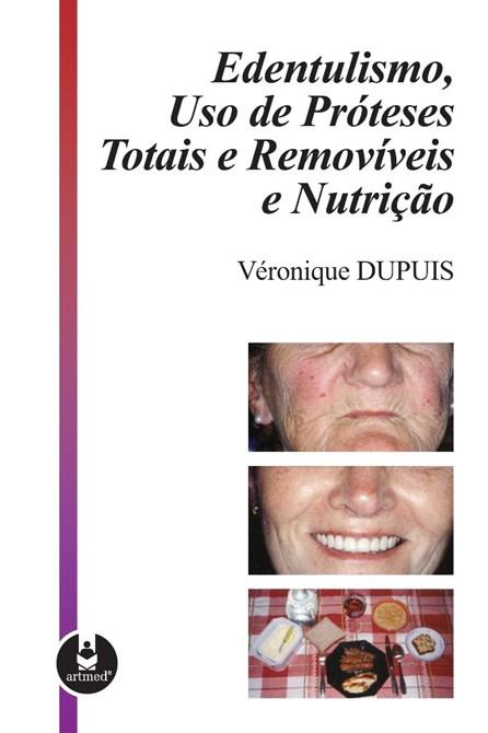 Livro - Edentulismo, Uso de Próteses Totais e Removíveis e Nutrição - Dupuis @@