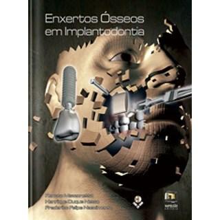 Livro - Enxertos Ósseos em Implantodontia - Mazzonetto