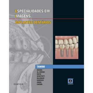 Livro - Especialidades em Imagens - Implantes Dentarios - Tamimi