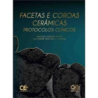 Livro - Facetas e Coroas Cerâmicas: Protocolos Clínicos - Netto - Santos