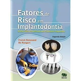 Livro - Fatores de Risco em Implantodontia - Análise Clínica Simplificada para um Tratamento Previsível - Renouard