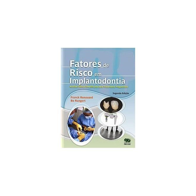 Livro - Fatores de Risco em Implantodontia - Análise Clínica Simplificada para um Tratamento Previsível - Renouard - Santos
